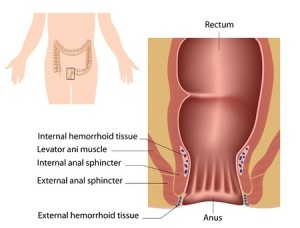 Get Rid of Hemorrhoids
