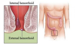 Get Rid of Hemorrhoids Naturally